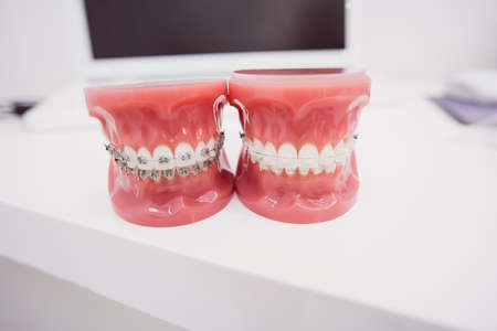 comunicacion oral: Close-up of teeth model in dental clinic LANG_EVOIMAGES