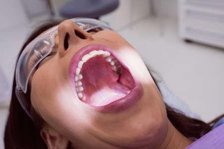 comunicacion oral: Female patient receiving a dental treatment at clinic