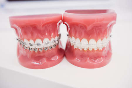 Close-up of teeth model in dental clinic LANG_EVOIMAGES
