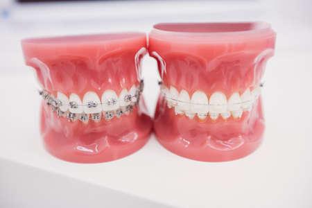 comunicacion oral: Primer plano del modelo de los dientes en la clínica dental LANG_EVOIMAGES