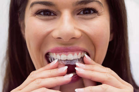 comunicacion oral: Female patient wearing braces in dental clinic