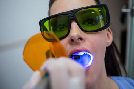 comunicacion oral: Dentista, examinando, pacientes, dientes, dental, curando, luz, clínica