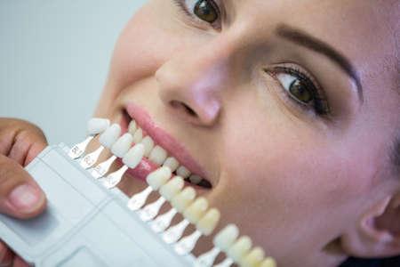 comunicacion oral: Dentista examina a paciente femenino con las sombras de los dientes en la clínica dental