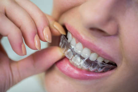 comunicacion oral: Primer plano de mujer con aparatos invisibles de silicona de ortodoncia