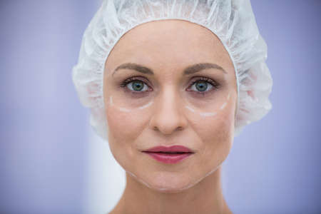 surgical cap: Portrait of woman with marks for cosmetic treatment wearing surgical cap LANG_EVOIMAGES