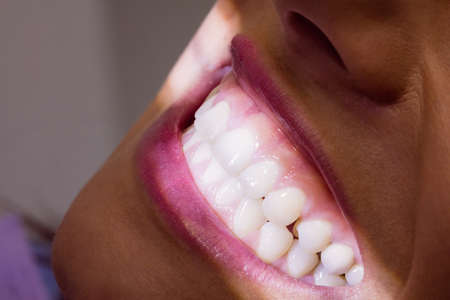 comunicacion oral: Close-up of female patient receiving a dental treatment at clinic
