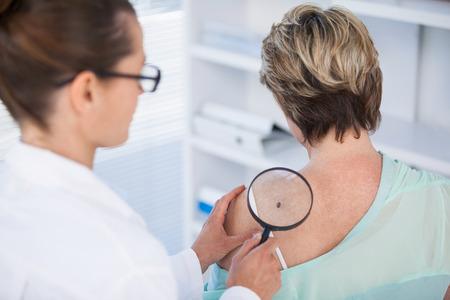 Dermatoloog onderzoekt mol vrouwelijke patiënt met vergrootglas in de kliniek