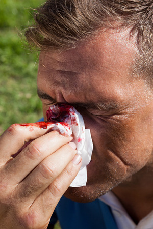 Close up of rugby player covering his injured nose at playing field