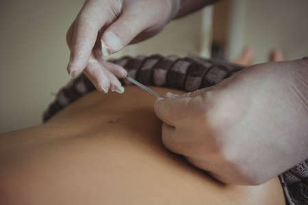 bodycare: Therapist giving acupuncture to man in spa