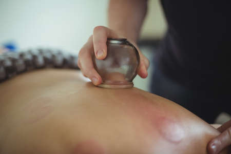 cupping glass cupping: Mid section of therapist giving cupping therapy to man in spa