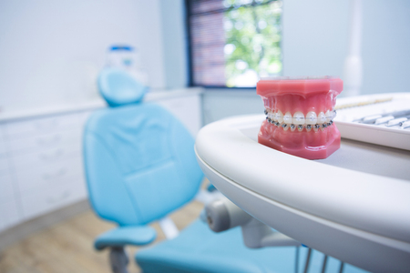 Dental mold on table by chair at medical clinic