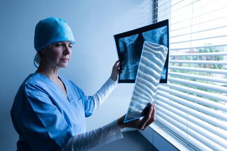 Side view of Caucasian female doctor examining minutely x-ray report in the hospital. Shot in real medical hospital with doctors nurses and surgeons in authentic setting