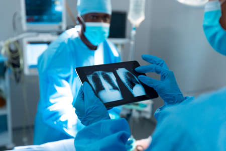 Doctor wearing surgical gloves looking at lung x-ray on tablet. medicine, health and healthcare services during coronavirus covid 19 pandemic.