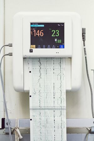 Close up of a fetal monitor or non stress test printing baby heartbeats, electrocardiograph and mother uterine contraction in Labor and delivery room at hospital.