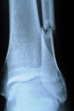 broken leg: x-ray of human leg (broken leg) Stock Photo