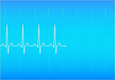 ECG Electrocardiogram  Blue  illustration Stock Vector - 18995237
