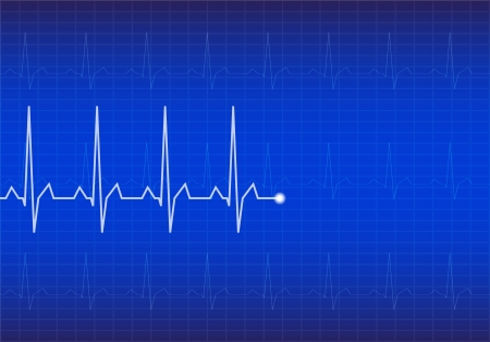 heart ecg trace: ECG Electrocardiogram  Blue vector illustration