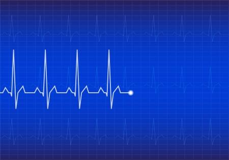 heart ecg trace: ECG Electrocardiogram  Blue vector illustration