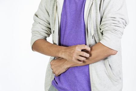 Jeune homme ayant problème des démangeaisons et la peau sèche Banque d'images