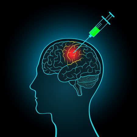 The injection syringe to the brain, the concept of direct treatment of brain tumors and other diseases Illustration