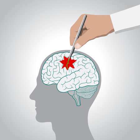The concept of brain recovery, memory, stroke, treatment of brain diseases vector illustration