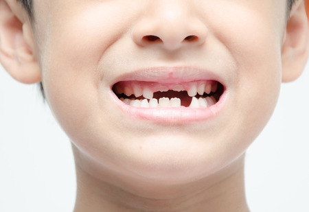 toothless: Little boy smiling show toothless dental care