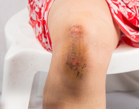medical person: Lesion on knee from accident