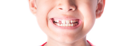 close up of kid toothless Stock Photo