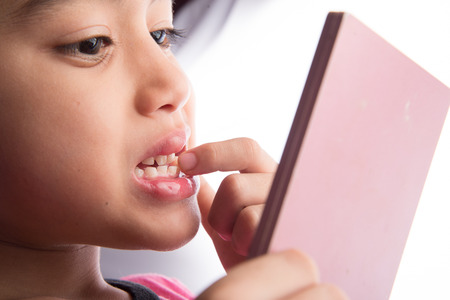 teething: Little boy with the first new permanent teeth