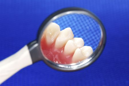 gingivitis: Dentist Mirror with Teeth in Reflection