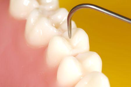 test probe: Foto di denti e un Dentista Probe. Dental Concept