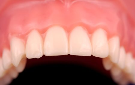 Straight and Aligned Upper Teeth Stock Photo