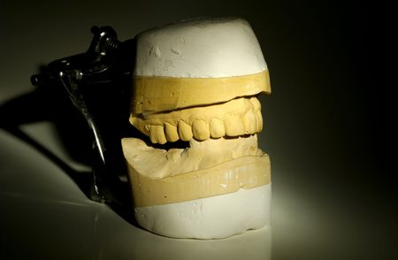 impressions: Photo of Dental Impressions