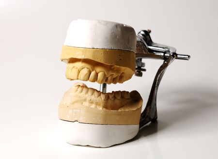 Photo of a Dental Mold Фото со стока
