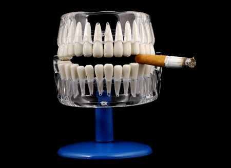 Photo of a Model of a Mouth With a Cigarette