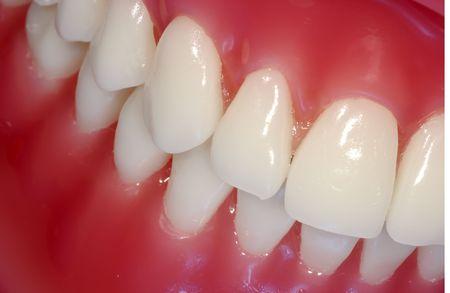 gingivitis: Photo of Teeth