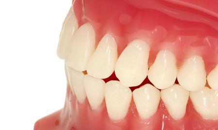 periodontal: Dental Model of Teeth Stock Photo
