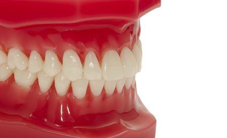 gingivitis: Dental Model of Teeth Stock Photo