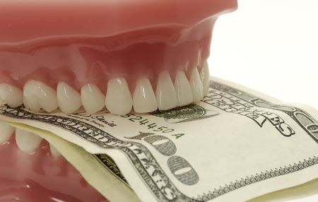 periodontal: Dental Costs Concept