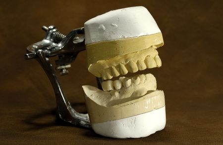 Photo of a Dental Casting / Mold - Dental Concept Stock Photo - 564406