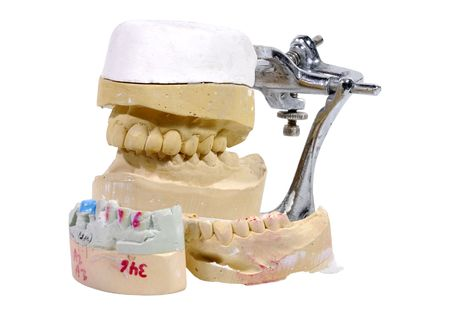 Photo of Plaster Dental Mold  Impression - Dental Related