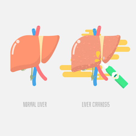 liver cirrhosis with drinking alcohol, vector illustration cartoon flat design clip art