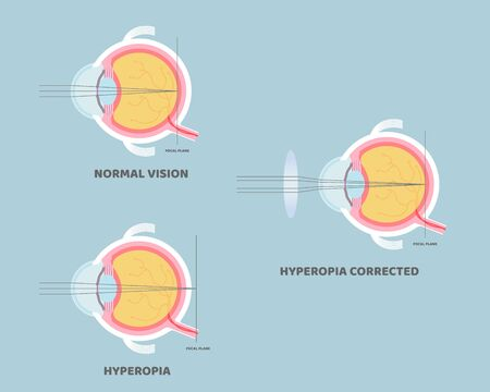 eyeball anatomy, internal organs body part nervous system, hyperopia concept, vector illustration cartoon flat design clip art
