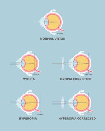 eyeball anatomy, internal organs body part nervous system, shortsighted, nearsighted, longsighted, farsighted, hyperopia and myopia concept, vector illustration cartoon flat design clip art