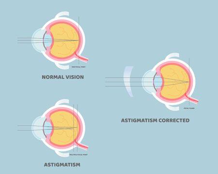 eyeball anatomy, internal organs body part nervous system, astigmatism corrected, eyesight concept, vector illustration cartoon flat design clip art