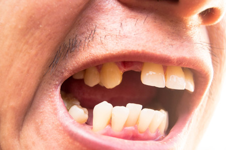 Man opening his mouth showing missing teeth