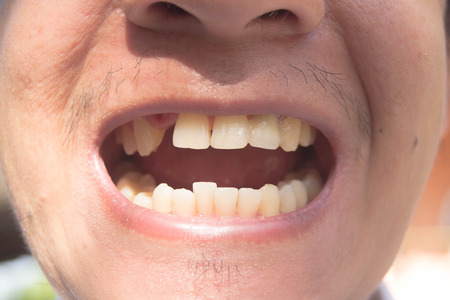 Man smiling showing missing teeth photo Stock Photo