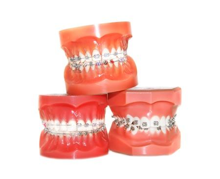 periodontics: Teeth with braces isolated Stock Photo