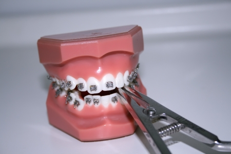 Dientes con aparatos e instrumentos dentales photo