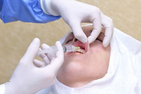 anesthetic: Woman gets anesthetic injection in mouth